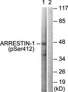 Western blot analysis of extracts from COS7 cells using Arrestin 1 (phospho-Ser412) antibody