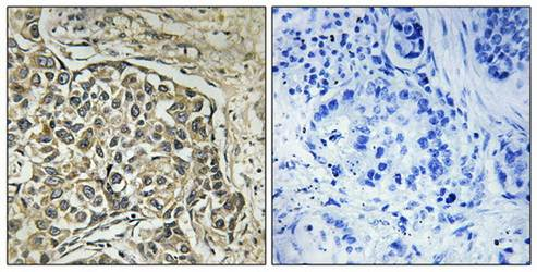 Immunohistochemical analysis of formalin-fixed and paraffin-embedded human lung carcinoma tissue using ARSD antibody