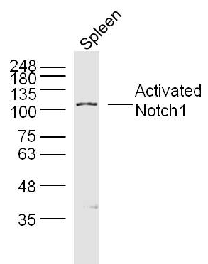 Western blot analysis of Mouse spleen Lysate using Activated Notch1 antibody.