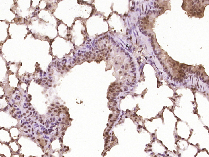 Immunohistochemical staining of Mouse lung using Activated Notch1 antibody.