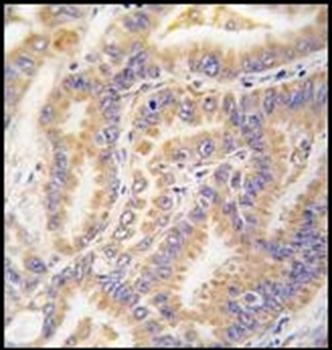 Immunohistochemical staining of paraffin embedded human lung carcinoma tissue using ATG12 antibody (primary antibody dilution at: 1:50-100)