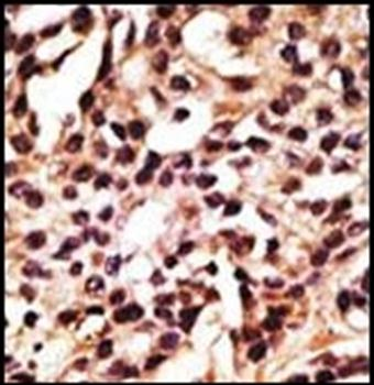 Immunohistochemical staining of human cancer tissue using ATG12 antibody (antibody dilution at 1:50-100)