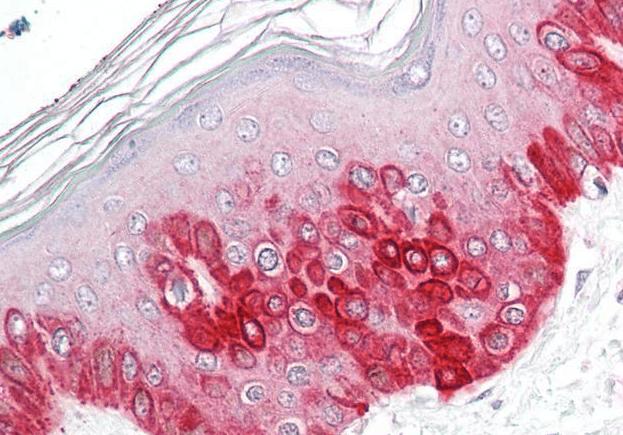 Immunohistochemical staining of Human Skin using ATG16L1 antibody