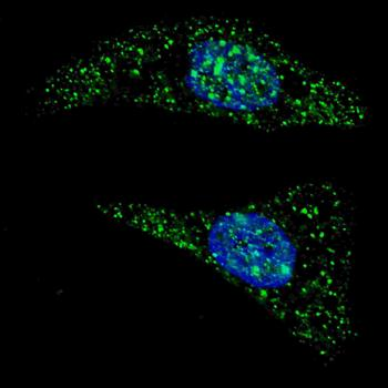 Immunofluorescense analysis of U251 cells using ATG5 antibody (primary antibody dilution at: 1:200)