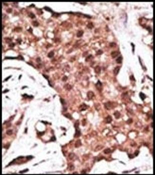 Immunohistochemical staining of paraffin embedded human cancer tissue using ATG5 antibody (primary antibody dilution at: 1:50-100)