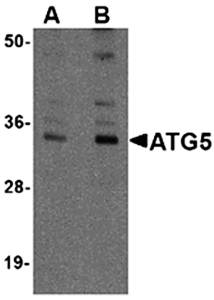 Western blot analysis of mouse spleen tissue lysate at (A) 1 and (B) 2 ug/mL using ATG5 antibody