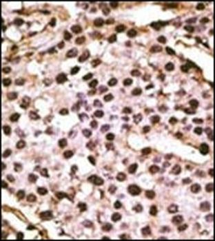 Immunohistochemical staining of paraffin embedded human cancer tissue using ATG9A antibody (primary antibody dilution at: 1:50-100)