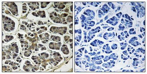 Immunohistochemical analysis of formalin-fixed and paraffin-embedded human pancreas tissue using ATP5G2 antibody