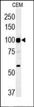 Western blot analysis of CEM cell line lysates (35ug/lane)using ATP6V0A4 antibody (primary antibody dilution at: 1:1000)