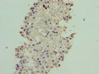 Immunohistochemistry of paraffin-embedded human breast cancer tissue using ATXN7L1 antibody