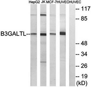 Western blot analysis of extracts from HepG2 cells, Jurkat cells, MCF-7 cells and HUVEC cells using B3GALTL antibody