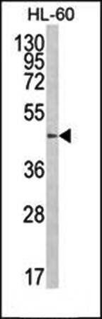 Western blot analysis of B4GalT1 antibody in HL-60 cell line lysates