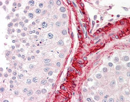 Immunohistochemical staining of paraffin embedded human testis tissue using BAG5 antibody (primary antibody at 1:200)