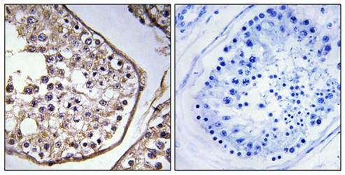 Immunohistochemical analysis of formalin-fixed and paraffin-embedded human testis tissue using BAGE3 antibody