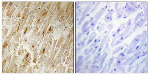 Immunohistochemical analysis of formalin-fixed and paraffin-embedded human heart tissue using BCA3 antibody