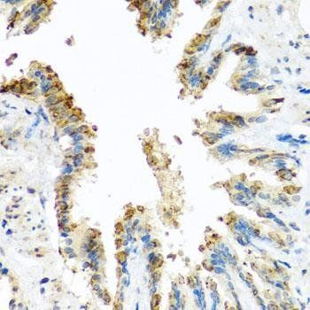 Immunohistochemical staining of rat lung tissue using BCKDK antibody (dilution of 1:100)
