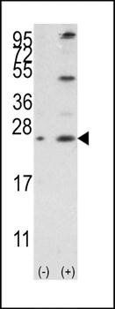 Western blot analysis of 293 cell lysateusing Bcl-w antibody (antibody dilution at 1:1000)