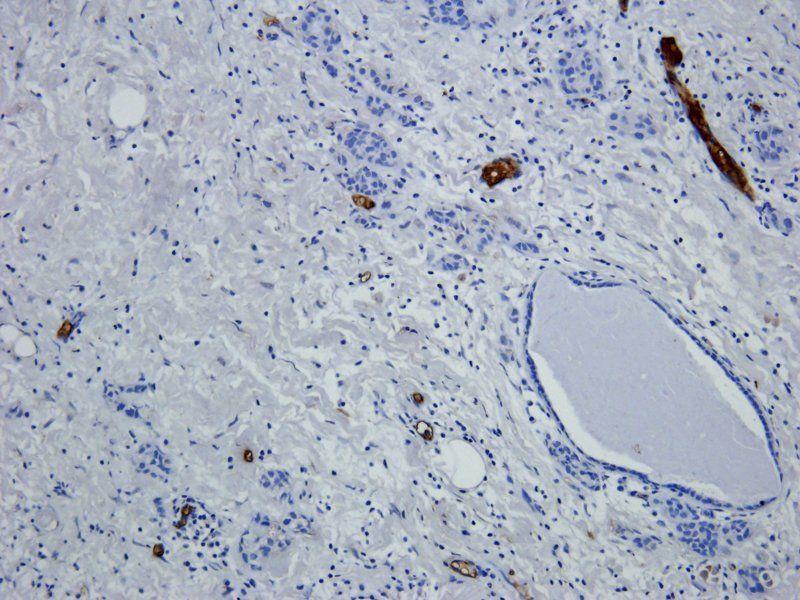 IHC-P image of human breast cancer tissue using BCL2 antibody (2.5 ug/ml)