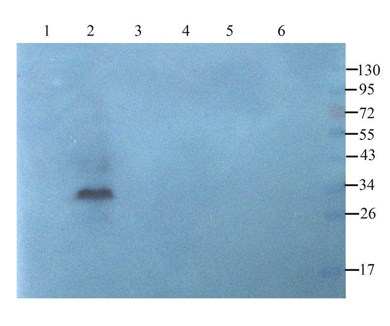 WB analysis of rat lymph node (lane 1), mouse heart (lane 2), rat spleen (lane 3), rat thymus (lane 4), mouse pancreas (lane 5), human breast cancer (lane 6) using BCL2 antibody (1 ug/ml)