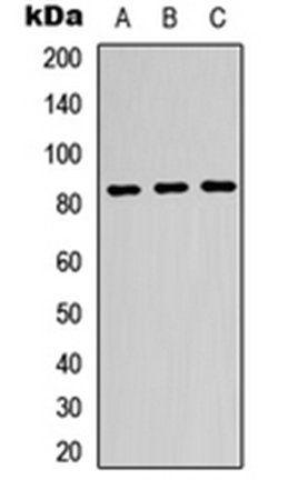 Western blot analysis of K562 (Lane1), HeLa (Lane2), HepG2 (Lane3) whole cell using beta-glucuronidase antibody