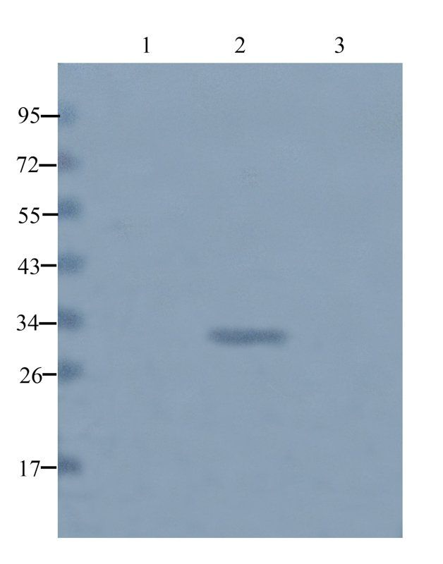 Western blot analysis of rat liver (lane 1), mouse heart (lane 2), Hela cells (lane 3) using beta 1 Adrenergic Receptor antibody (1 ug/ml)