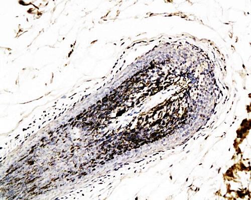 Immunohistochemical analysis of paraffin-embedded human scalp hair follicle catenin  using beta Catenin antibody