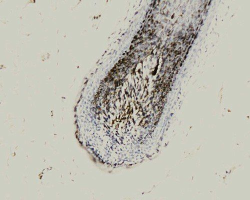 IHC-P of human scalp hair follicle catenin  (beta Catenin antibody at 1:200)