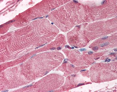 Immunohistochemical staining of paraffin embedded human skeletal muscle tissue using BMI1 antibody (primary antibody at 1:200)