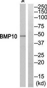 Western blot analysis of extracts from Jurkat cells using BMP10 antibody