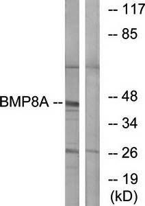 Western blot analysis of extracts from COLO cells using BMP8A antibody