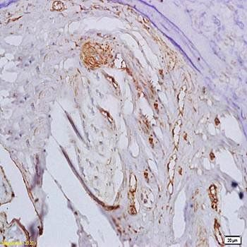 Immunohistochemical analysis of formalin-fixed and paraffin embedded rat bone marrow tissue (dilution at:1:200) using BMPR1A antibody