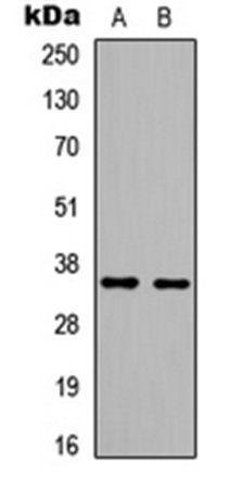 Western blot analysis of HeLa (Lane1), HEK293T (Lane2) whole cell using BRAF35 antibody