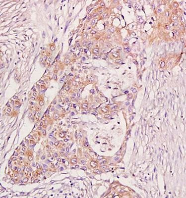 Immunohistochemical analysis of formalin fixed and paraffin embedded human breast carcinoma using BRAF antibody