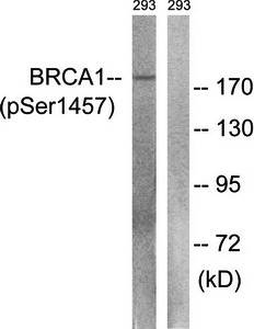 Western blot analysis of extracts from 293 cells using BRCA1 (phospho-Ser1457) antibody