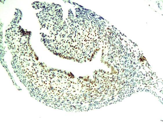 Immunohistochemical analysis of paraffin-embedded mice ovarian tissue using  BrdU antibody