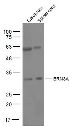 Western blot analysis of mouse cerebrum Lysate at 40 ug, mouse spinal cord Lysate at 40 ug using BRN3A antibody