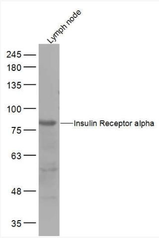 Western blot analysis of Rat Lymph node Lysate using Insulin Receptor alpha antibody