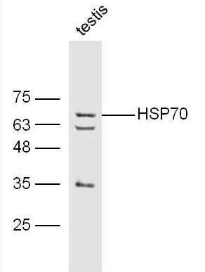 Western blot analysis of mouse testis lysate using HSP70 antibody