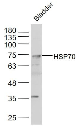 Western blot analysis of mouse bladder lysate using HSP70 antibody