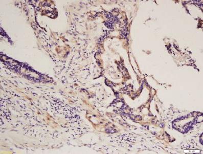Immunohistochemical staining of human colon carcinoma using PDGF Receptor alpha antibody