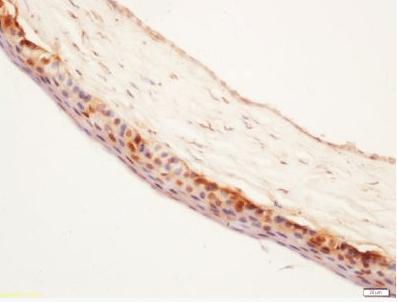 Immunohistochemical staining of rat eyes using PEDF antibody