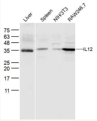 Western blot analysis of mouse liver(lane 1), mouse spleen(lane 2), mouse NIH/3T3(lane 3), mouse RAW246.7(lane 4) cell lysate using IL12 antibody