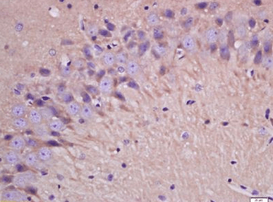 Immunohistochemical staining of rat brain tissue using IL1 beta antibody