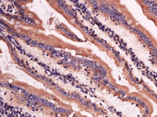 Immunohistochemical analysis of mouse intestine tissue using Lysozyme antibody