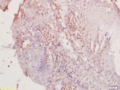 Immunohistochemical staining of rat colon tissue using PAX8 antibody