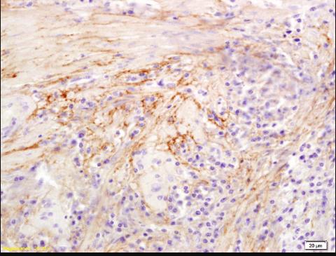 Immunohistochemical staining of human colon carcinoma using Hyaluronidase antibody