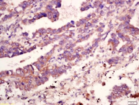 Immunohistochemical staining of human lung cancer tissue using MMP10 antibody