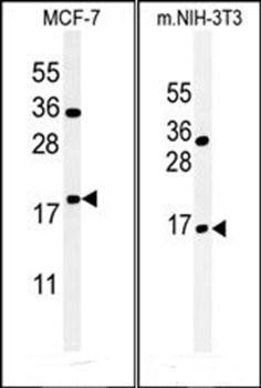 Western blot analysis of MCF-7 cell line lysates (35ug/lane)using BTG1 antibody (primary antibody dilution at: 1:1000)