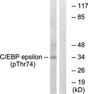 Western blot analysis of extracts from HUVEC cells using C-EBP-epsilon (phospho-Thr74) antibody