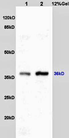 Western blot analysis of rat liver lysates(Lane1),rat brain lysates(Lane2) using c-Jun antibody